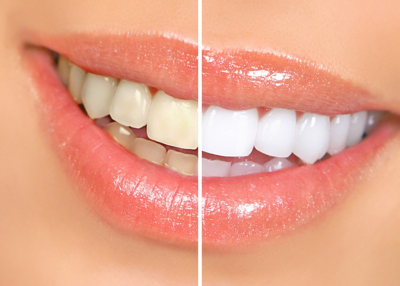 Teeth Whitening  Watkinsville, GA